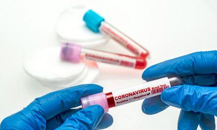 Тест на антитела IgM и IgG к COVID-19