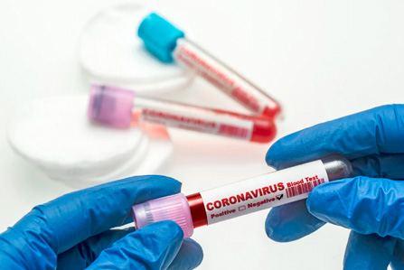 Тест на антитела Covid-19 с выездом на дом